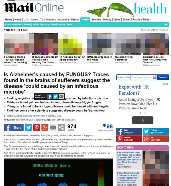 건망증-기억상실증-기억력-머리-두뇌-뇌-장수-힐링-웰빙-알츠하이머 치매-곰팡이-진균-베타 아밀로이드 단백질-임상시험-전염-Alzheimer-FUNGUS-infectious microbe-Alzheimer's disease