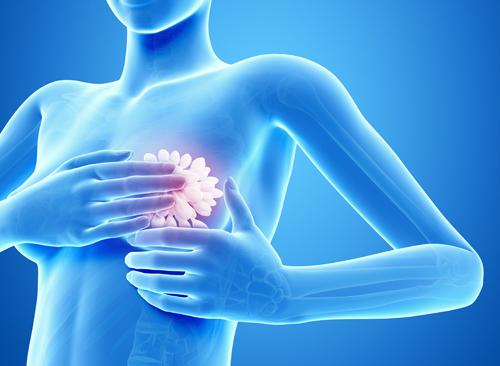 가슴성형부작용, 박진석성형외과