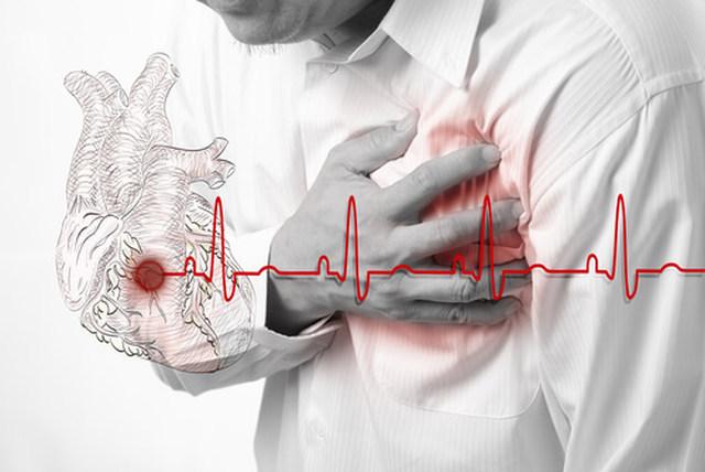 심장박동 심장마비전조증상