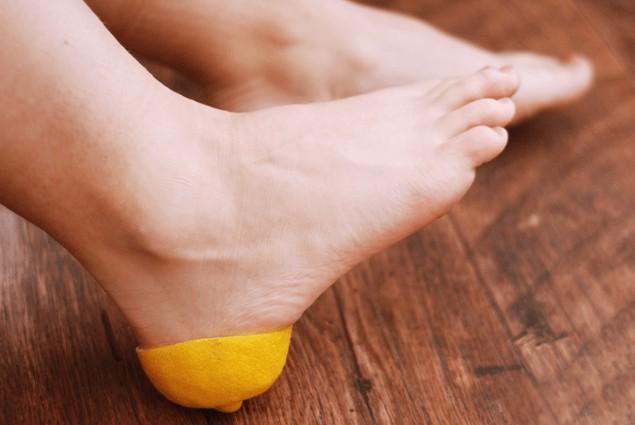 발뒤꿈치 굳은살 제거 레몬 활용법